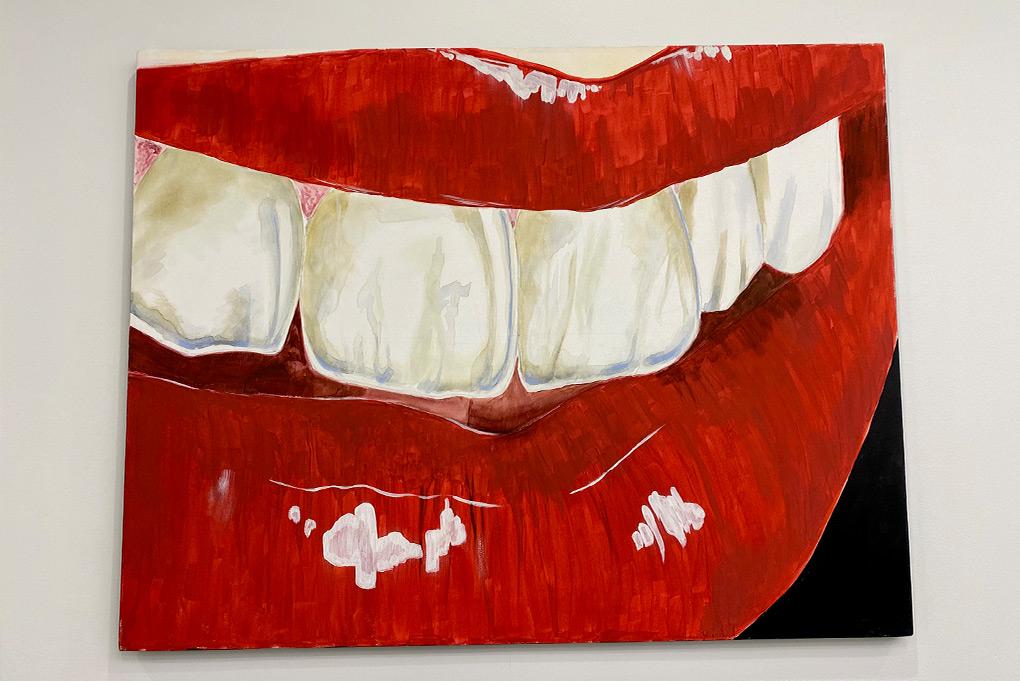 Художественная реставрация зубов/ Композитные виниры